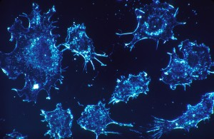 cancer-cell-